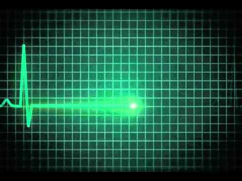 flat-line-EKG 1