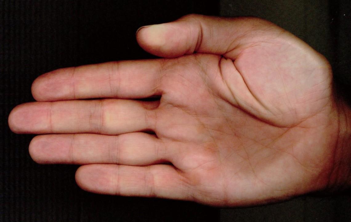 Hand 3 (Mittel)